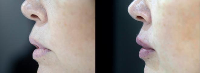 hidratación y perfilado de labios